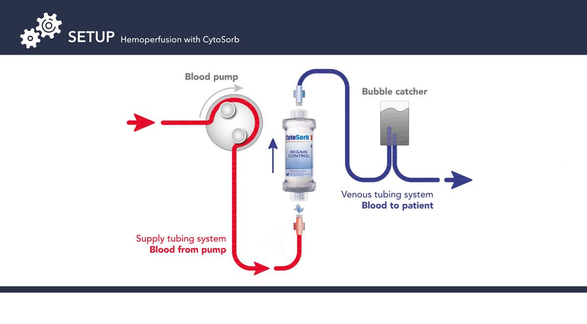 SETUP-Hemoperfusion-with-CytoSorb.jpg